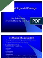 tumores de esofago 4