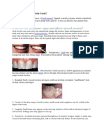 What is Acid Erosion of the Teeth