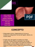 Cirrosis e hipoglicemia