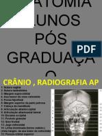 Anatomia Radiológica do Crânio e Coluna