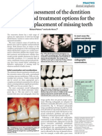 Assessment of the Dentition and Treatment Options for the Replacement of Missing Teeth