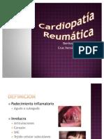 Cardiopatía Reumatica