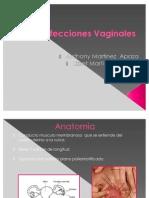 Infecciones Vaginales