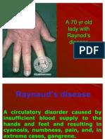 Raynod's Disease