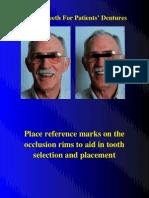 7.2. Complete Denture