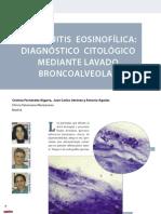 CV11 bronquitis