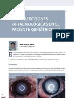 CV12 afecciones oculares