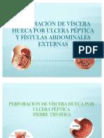 Perforacion de Viscera Hueca & Fistulas Abdominales