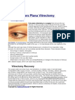 What is Pars Plana Vitrectomy Surgery?