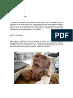 Diseccion Fosa Infra Temporal - Jose Luis Ruiz - Julian Saavedra