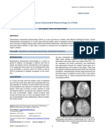 Spontaneous Intracerebral Haemorrhage in a Child
