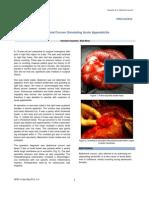 Abdominal Cocoon Simulating Acute Appendicitis