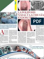 La Poliposis Nasal
