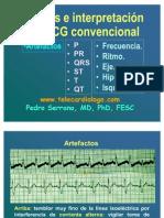 Análisis e interpretación  de EKG convencional 1