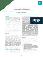 Amigdalite-Consenso