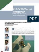 CV13 Protesis de Cadera