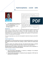 A Case of Hydrocephalos Cured With Homoeopathy