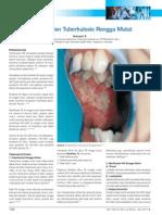 Hiv n Tbc Rongga Mulut