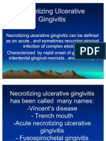 Necrotizing+Ulcerative+Gingivitis