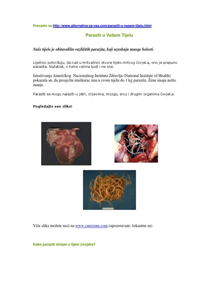 paraziták és tijelu covjeka