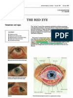 ABC of Red Eye