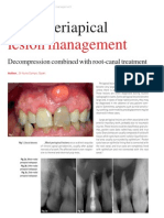 Large Lesion Management_Roots0112