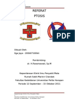 Copy of Referat Ptosis Ega Jaya - 07120060064