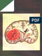 Cdk 077 Tumor Otak