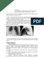 2009 Cc4 Masa Pulmonar Cavitada