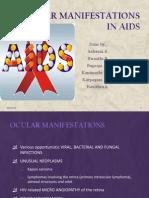 Ocular Compl - AIDS 1