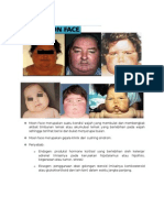 Moon Face, Face Swelling, Dan Plethoric Face