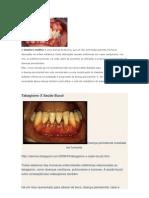 dença periodontal tb.