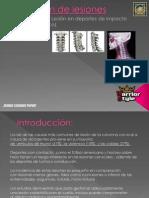 Salud Prevencion Lesiones (Zona Posterior-tren Superior)