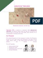 NjMycobacterium Tuberculosis