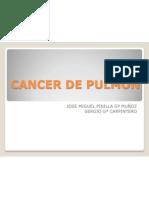 cancer-de-pulmon-1234556541575512-2