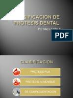 Clasificacion de Protesis Dental