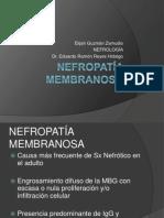 Nefropatía membranosa