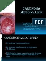 Carcinoma Microinvasor Colpo Clase