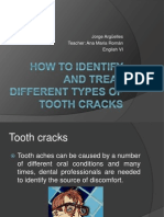 How to Identify and Treat Different Types of Tooth Cracks