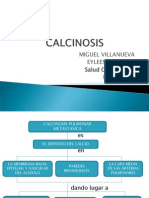 CALCINOSIS