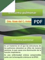 enfisemapulmonar
