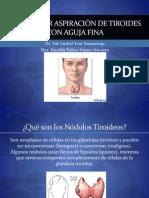 Biopsia de Tiroides