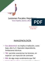 Lesiones Focales Hepáticas3
