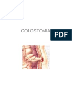Cancer de Colon y Colostomia