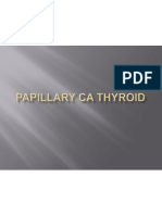 Saravanan Papillary CA Thyroid