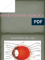 Conjuntivitis Ale