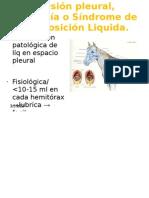 Efusión pleural, Pleuresía o Síndrome de Interposición