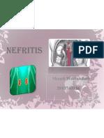 NEFRITIS