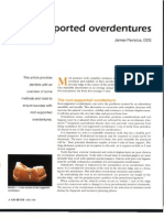 Root Supported Over Dentures