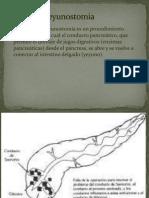 Pancreatoyeyunostomia